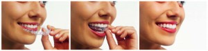 Invisalign is offered at Dental Health Colorado
