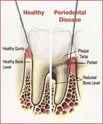 Oral Bacteria From Periodontal Disease Can Contribute Towards Hip or Knee Prosthesis Failure