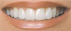 Porcelain veneers are a great option to improve a smile.