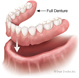 A common denture application is a full denture.