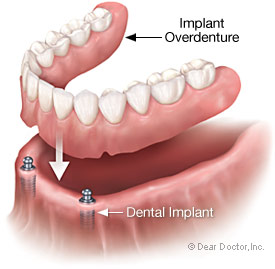 New technologies in dentures include implants.