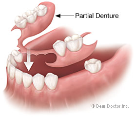One option in dentures is a partial denture.